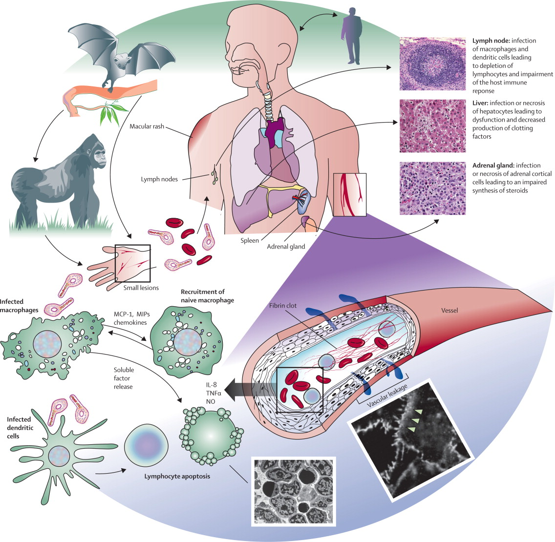 Viral Infection Link To Sjogren S Syndrome: Ideal Cure...: August 2014